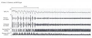 asv-graph